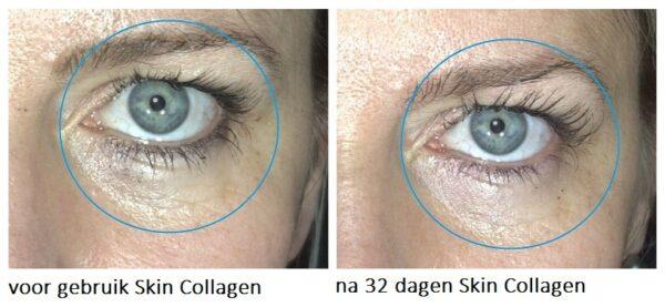 Marloes Skin Collagen