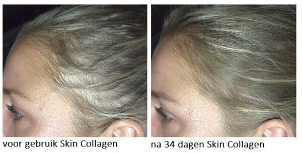 Suzanne Skin Collagen